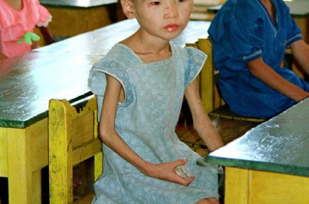 La desnutrición infantil en Corea del Norte reflejada en una fotografía